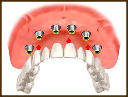 Несъемные зубные протезы на имплантах цены