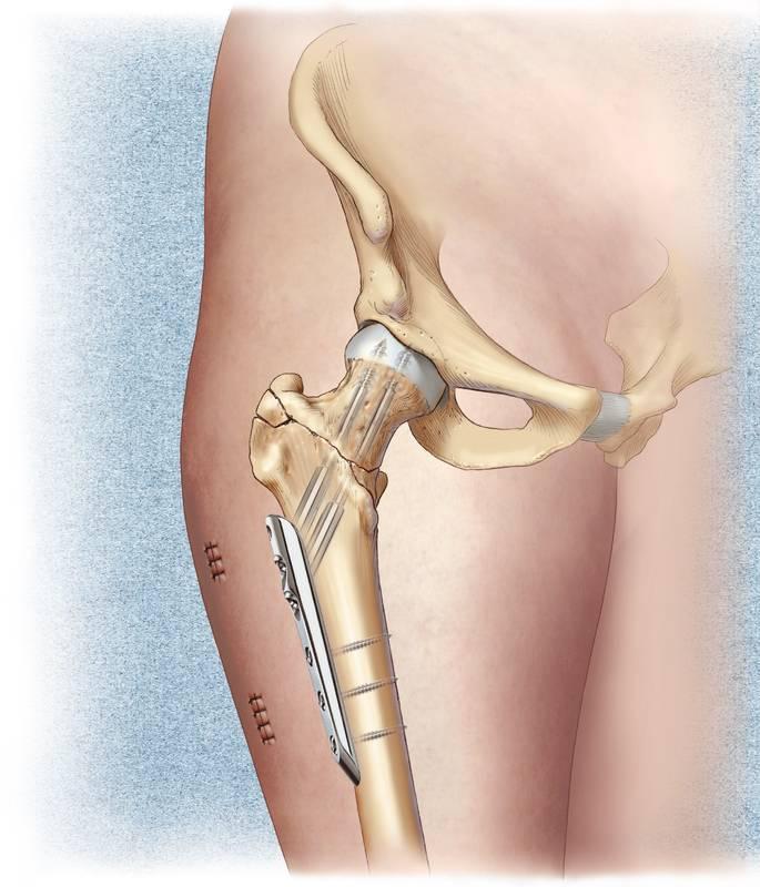 Боль в тазобедренном суставе – причины, симптомы