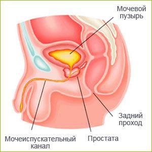 аденома простаты симптомы и лечение