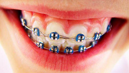 Картинки по запросу Современные методы выравнивания зубов