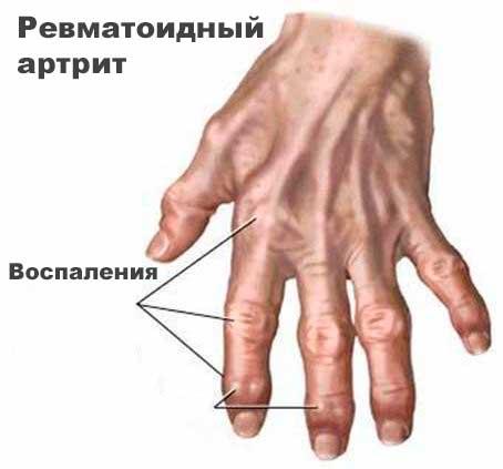 Ревматоидный артрит – что это за болезнь