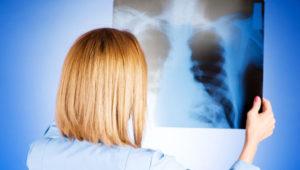 особенности лечения туберкулеза
