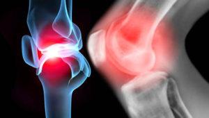 Лечение заболеваний суставов
