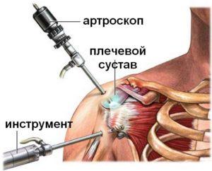 artroskop_plecha