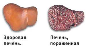 гепатита С