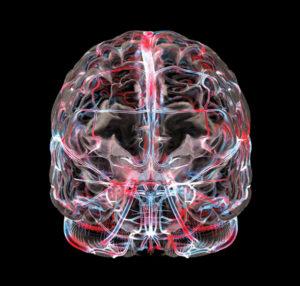 пэт кт головного мозга